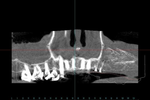 aufgebauter-Knochen-vor-Implantation