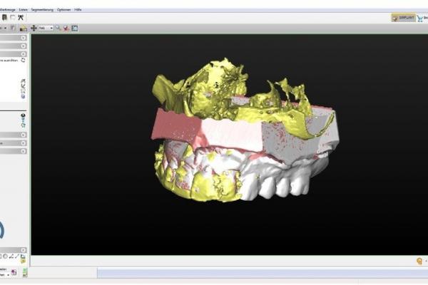 3-D-Bild grün=DVT, rosa=Modellscan, weiss=Wax-upScan